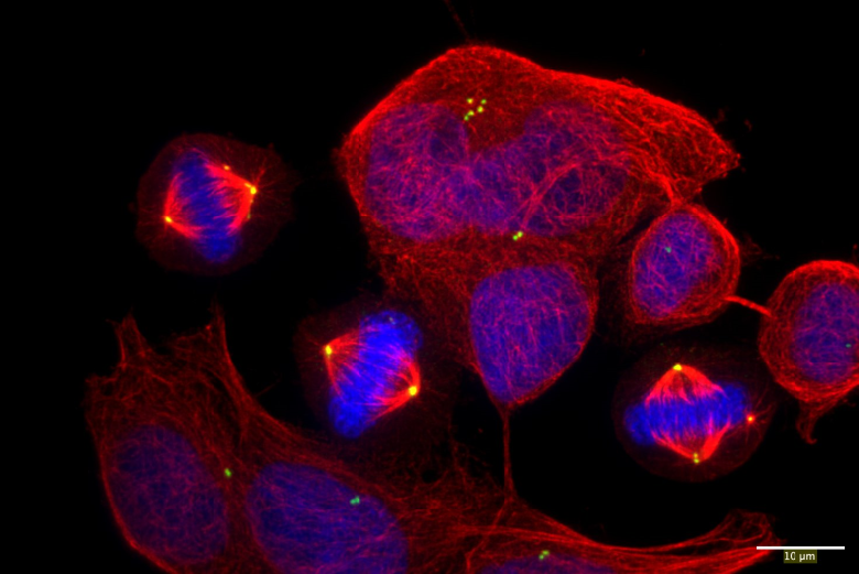 Cancer cells promote cell division errors